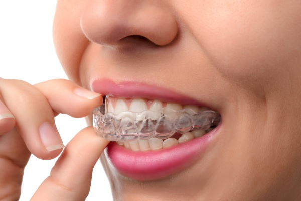 Ways To Help You Adjust To Clear Aligners